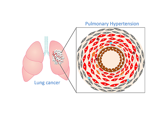 In der Umgebung des Tumors findet eine entzündungsfördernde Kommunikation zwischen Lungenkrebszellen und Immunzellen statt. © Rajkumar Savai