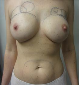 Abb. 10: Ausgleich kosmetischer Defizite durch Lipofilling.
