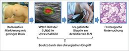 Abb. 3: Schritte der nicht-chirurgischen Sentinellymphknoten-Biopsie (SLNB).