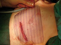Abb. 8: Patientin mit unklarer, wahrscheinlich pathogener Variante im BRCA2-Gen.