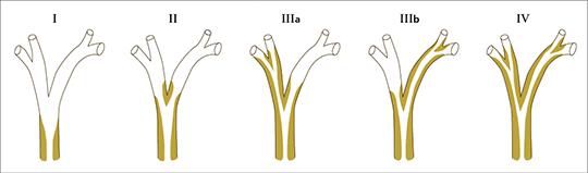Abb. 1: Einteilung der perihilären Tumore (Klatskin-Tumore) nach Bismuth in die Typen I-IV.