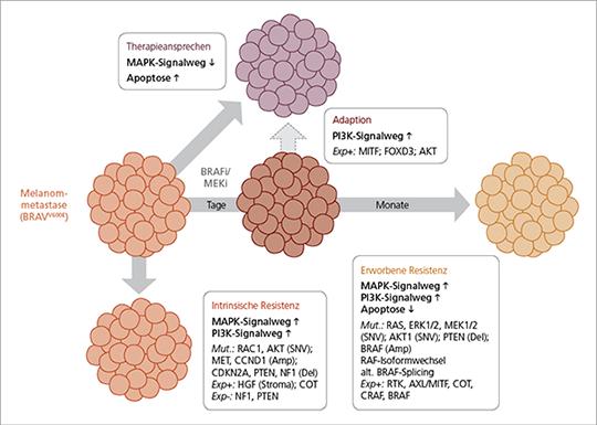 Abb. 1: Phasen und Hauptfaktoren der Resistenzentwicklung gegen die Blockade des MAPK-Signalwegs mittels BRAF/MEK-Inhibitoren.