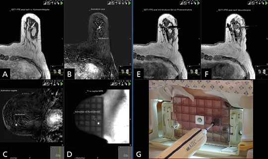 Planung/Ablauf einer MR-gestützten Vakuumbiopsie