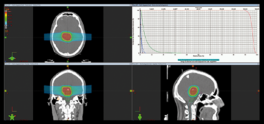 Abb. 2: Bestrahlungs-Planungs-CT eines Patienten mit Hirnstammgliom. Die Isodosenverteilung zeigt dabei die hohe Tumorkonformität, den steilen Dosisabfall und die geringe seitliche Streuung bei einer Protonen-Bestrahlung. Dies resultiert in einer hohen Dosis im Zielvolumen (blaue Linie) bei gleichzeitiger niedriger Integraldosis im Umgebungsgewebe und einer guten Schonung der Risiko-Organe (Chiasma, Nn. Optici, Rückenmark, Hirnstamm, Innenohr).