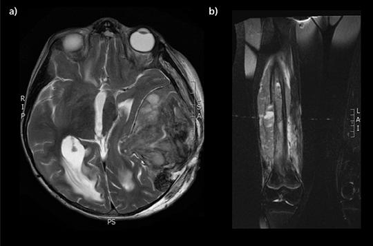 Abb. 2: a) und b) Ewing-Sarkom der Schädelkalotte mit ausgedehnten, intrakraniellen Tumoranteilen sowie Ewing-Sarkom des rechten Femurs.
