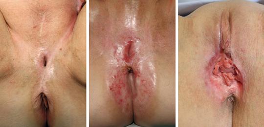 Abb. 1: Häufiges Ergebnis nach partieller oder totaler Vulvektomie ohne Rekonstruktion (mod. nach (16)).