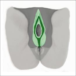 Abb. 2: Onkogenetische Anatomie der Vulva.