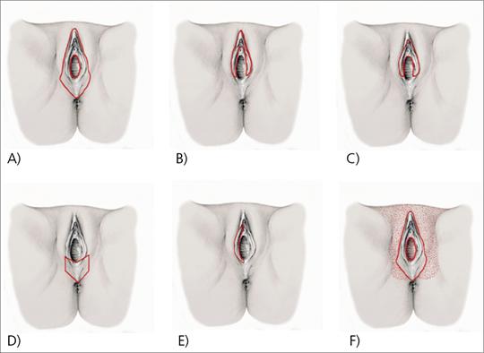 Abb. 3: Inzisionslinien der verschiedenen Formen der Vulvafeldresektion (VFR) (mod. nach (1)).