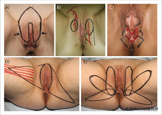 Abb. 4: Übersicht über die 5 Flap-Grundformen, welche für die Deckung der häufigsten Vulvadefekte ausreichen.