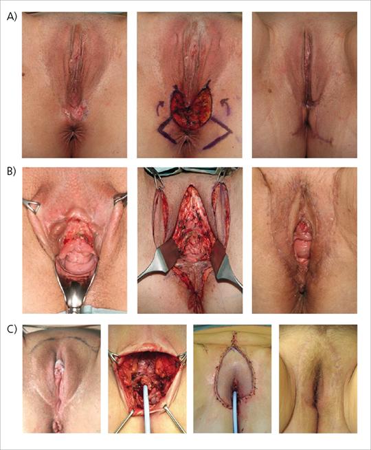 Abb. 5: Ergebnis nach partieller oder totaler VFR mit anatomischer Rekonstruktion.
