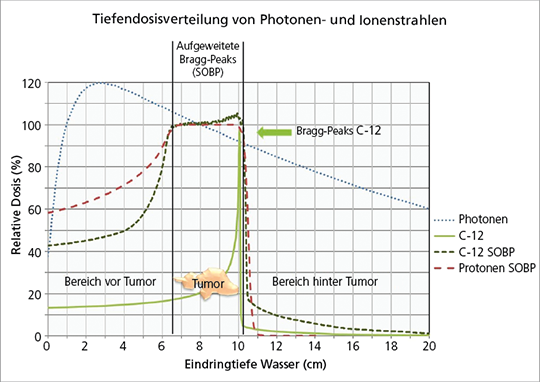Abb. 1: Charakteristische Tiefendosisprofile für Photonen, Protonen und Kohlenstoffionen.
