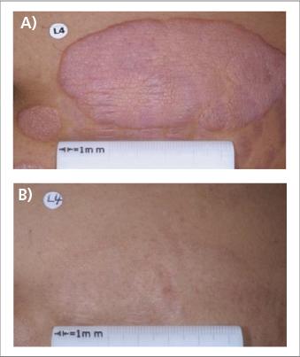 Abb. 2: Beispiel für einen Patienten mit MF aus der ALCANZA-Studie (5). A) vor Behandlung mit BV, B) nach 16 Zyklen BV.