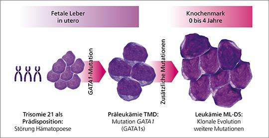 Molekulare Pathogenese der TMD und ML-DS