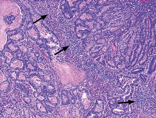 Abb. 2: Zahlreiche Tumor-infiltrierende Lymphozyten bei einem medullären Karzinom des Kolons (Pfeile) (32).