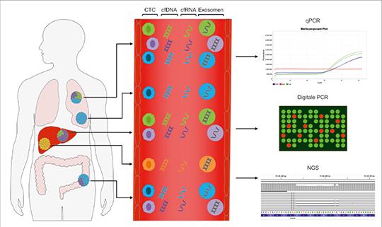 Abb. 1: Erfassung der Tumorheterogenität mit Hilfe der Liquid Biopsy (mod. nach (1)).