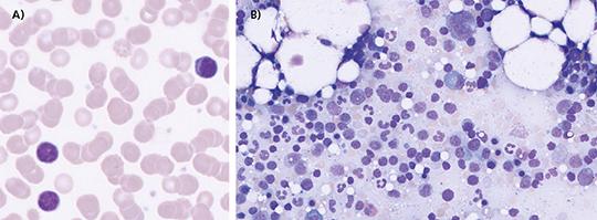 Abb. 1: A) Peripherer Blutausstrich (pB) mit Geldrollenbildung und kleinen Lymphozyten, durchflusszytometrisch konnte eine klonale B-Zell-Population nachgewiesen werden, B) KM-Ausstrich: kleine Lymphozyten neben plasmozytisch differenzierten Zellen und Plasmazellen.
