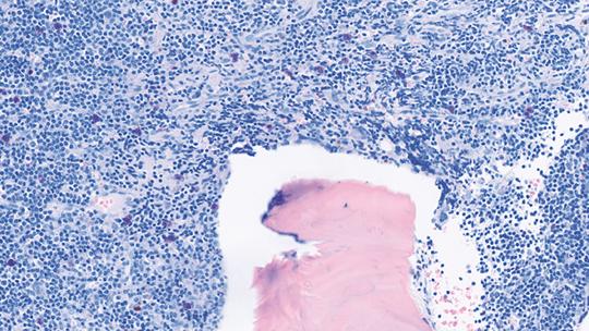 Abb. 2: Gie-Färbung mit einer hochgradigen M. Waldenström-Infiltration, beachte die zahlreichen Mastzellen, MYD88L265P konnte nachgewiesen werden.