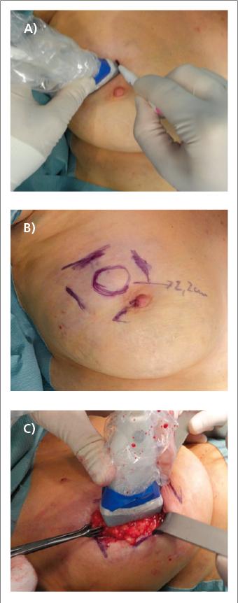 Abb. 1: Präoperative Markierung des Tumors in A) und B) peripher-mamillärer Ebene senkrecht zu dieser Achse, C) Intraoperative Optimierung der Resektionsränder durch den Operateur.