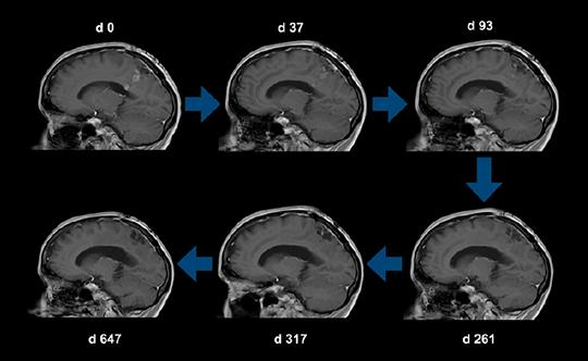 Darstellung Tumorregress unter CUSP9v3