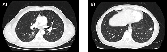 Abb. 2A), B): 01/2018: PR der Lungenmetastasen nach 2-monatiger Induktionstherapie mit Ramucirumab + FOLFIRI.