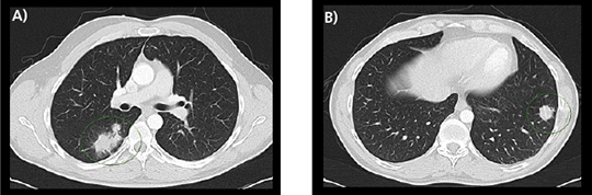Abb. 1A), B): 11/2017: Pulmonale Metastasierung des Rektumkarzinoms.