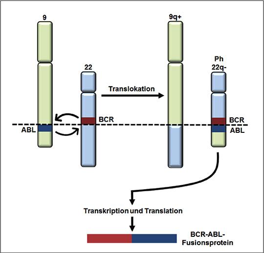 Schematische Darstellung der Chromosomentranslokation