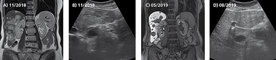 Abb. 1: Lebermetastasen im CT (A) und Ultraschall (B); Ansprechen auf Abemaciclib + Fulvestrant im Restaging-CT (C); Subtotale Regression der Lebermetastasen im Ultraschall (D).