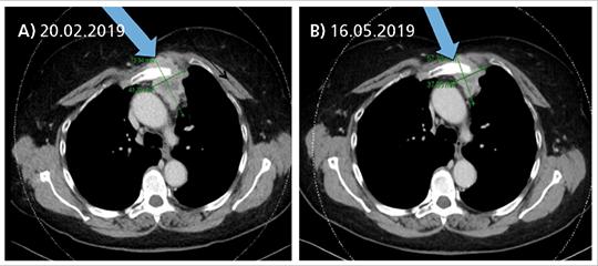 Abb. 1: CT-Verlaufskontrolle: Tumorregression von 6,3 x 4,1 cm (A) auf 4,6 x 3,5 cm (B).