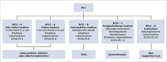 BCLC-Staging und -Behandlungssystem