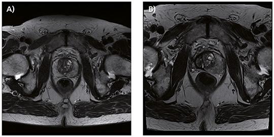 mpMRT der Prostata vor und 1 Jahr nach HIFU-Hemiablation