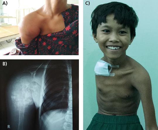 Abb. 3: Patientenbeispiel mit Osteosarkom am proximalen Humerus und an der Schulter rechts.