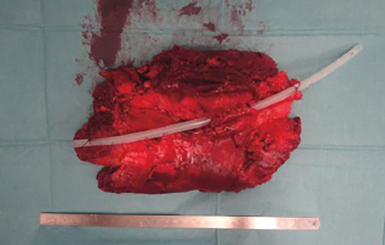 Abb. 3: Am Resektat wurde im Verlauf des N. ischiadicus ein Katheter eingelegt, um dem Pathologen die Orientierung und Beurteilung zu erleichtern.