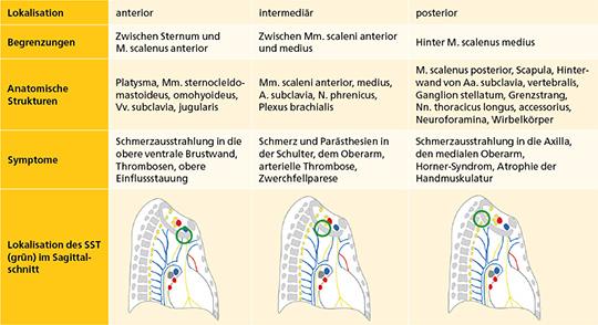 Tab. 1: Symptome von SST nach ihrer Lokalisation in der oberen Thoraxapertur