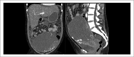 Unterbauchtumor mit Peritonealkarzinose