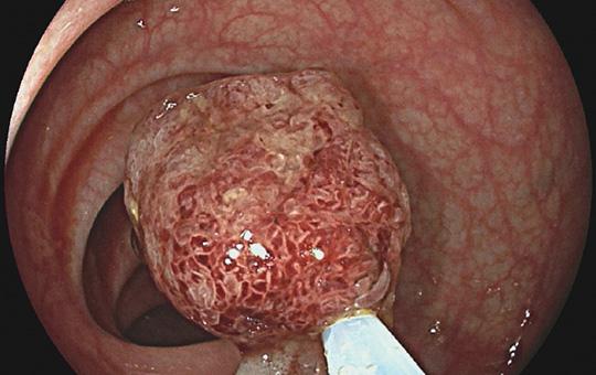 Abb. 1: Maligner Polyp im Colon sigmoideum (© Prof. Dr. M. Oette).