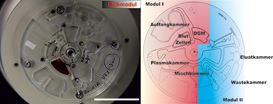 Abb. 1: Diskplattform bestehend aus Modul I und II und den Kammern für die entsprechenden Prozessschritte. Der Messbalken entspricht 5cm. © iba Heiligenstadt