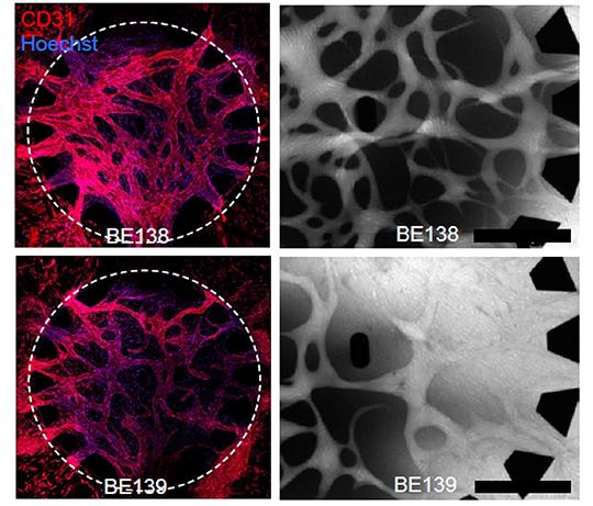 """Aufnahmen von Blutgefässen, die von """"normalen"""" Perizyten abgedichtet werden (obere Reihe), verglichen zu Blutgefässen mit Perizyten aus Tumorgewebe (unten). Die Gefässe unten sind deutlich undichter. © Inselspital Bern/Universität Bern"""