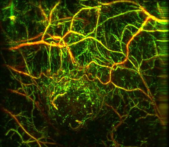 Neue bildgebende Methoden erlauben eine frühere Diagnose von Tumorerkrankungen. © Murad Omar/Helmholtz Zentrum München