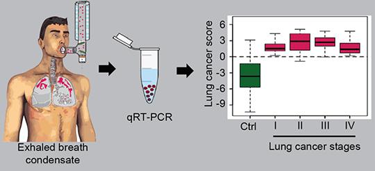 Anhand der unterschiedlichen Mengen abgegebener RNA-Moleküle lassen sich Krebszellen in der Lunge aufspüren. © MPI f. Herz- und Lungenforschung/G. Barreto