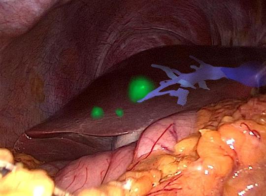 Abb. 1: Erweiterte Realität: In das Endoskopie-Bild der Leber sind die dreidimensionale Darstellung der Tumoren (grün) und des Gefäßbaums (blau) eingeblendet. @KIT