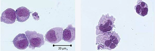 AML-Zellen vor (links) und nach kombinierter, epigenetisch wirksamer Behandlung mit einem Histon-Demethylase (LSD1)-Inhibitor und Retinsäure (in vitro-Experiment). © PD Dr. Karsten Rippe, DKFZ Heidelberg