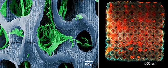 Tumorzellen auf 3D-Scaffold (links: Detail, Rasterelektronenmikroskopie, coloriert; rechts: Übersicht, Konfokalmikroskopie) © robodread