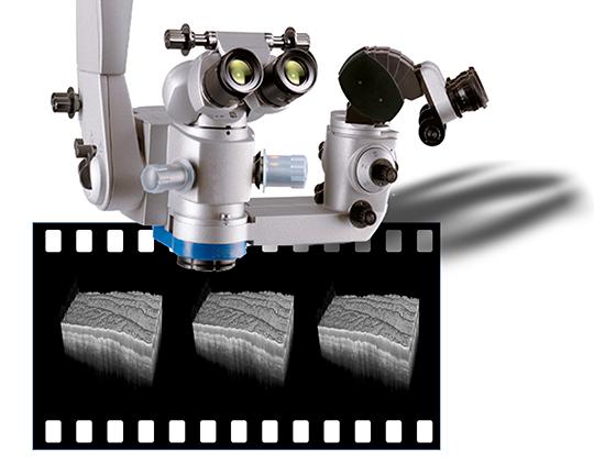 Kopf eines Operationsmikroskops, über den 3-D OCT-Hirngewebeaufnahmen mit Videorate in Echtzeit aufgenommen werden sollen © Neuro-OCT