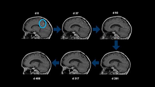 Beispielhafte Rückbildung eines Glioblastomrezidivs unter Behandlung mit CUSP9v3 in der Magnetresonanztomographie (MRT) (© Tim Heiland, Klinik für Neurochirurgie)