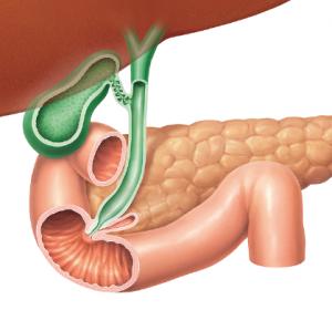 Aktuelle diagnostische und therapeutische Ansätze bei fortgeschrittenen biliären Tumoren