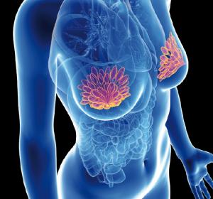 Operative Behandlung des Zervixkarzinoms: Gehört die minimal-invasive Chirurgie schon der Vergangenheit an?