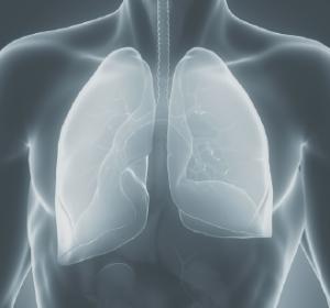 NSCLC: Neue Tyrosinkinase-Inhibitoren sind effektiv bei EGFR- oder ALK-Mutation