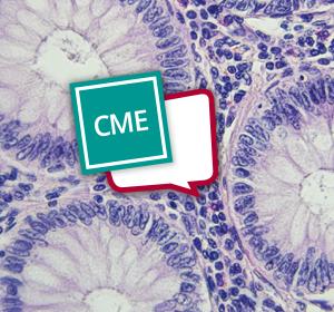 Therapieentscheidungen und Sequenztherapie beim metastasierten kolorektalen Karzinom