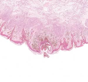 Zielgerichtete Kombinationstherapie beim malignen Melanom: Encorafenib und Binimetinib in der Praxis wirksam und verträglich