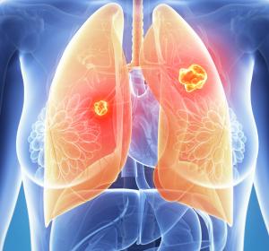 ZNS-Metastasen sind besondere Herausforderungen bei der Behandlung von Patienten mit NSCLC